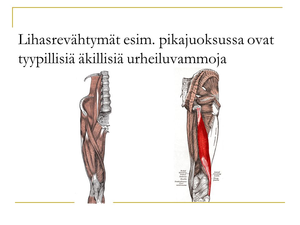 Lihasrevähtymät esim. pikajuoksussa ovat tyypillisiä äkillisiä urheiluvammoja