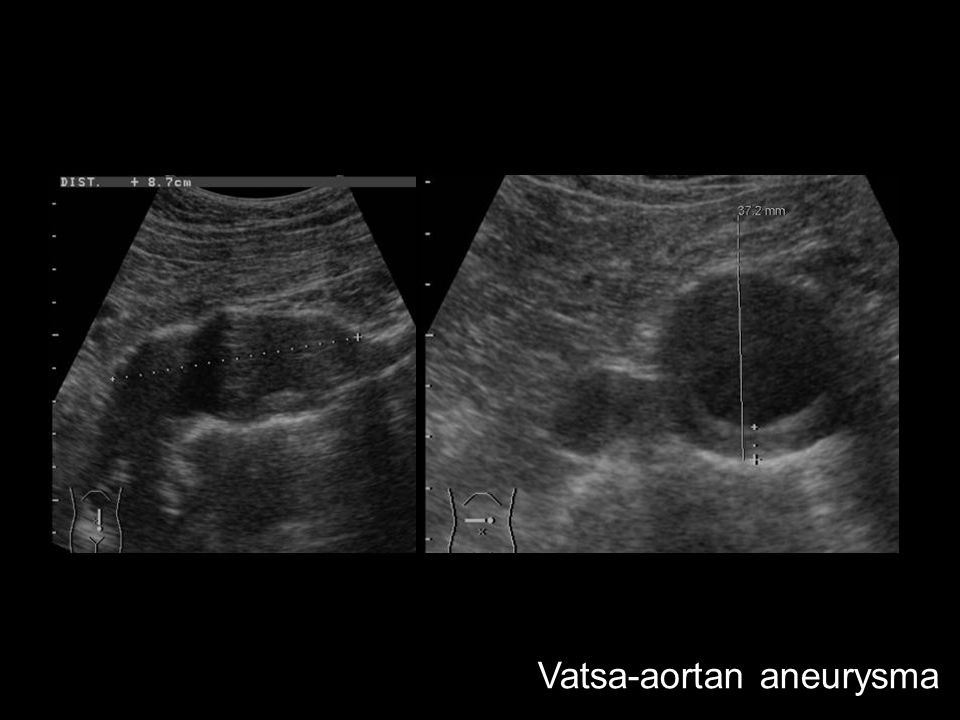 Vatsa-aortan aneurysma