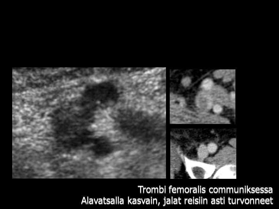 Trombi femoralis communiksessa Alavatsalla kasvain, jalat reisiin asti turvonneet
