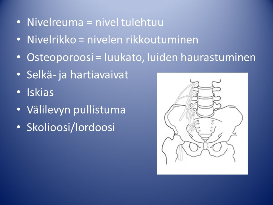 Nivelreuma = nivel tulehtuu