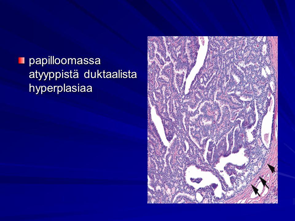 papilloomassa atyyppistä duktaalista hyperplasiaa