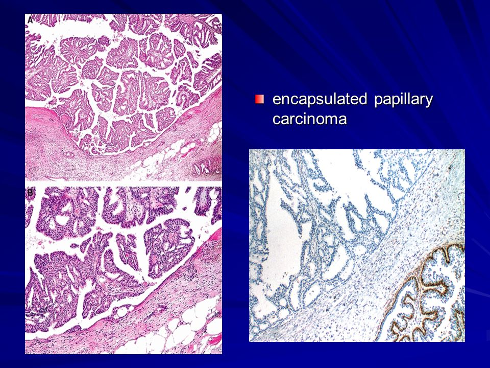 encapsulated papillary carcinoma