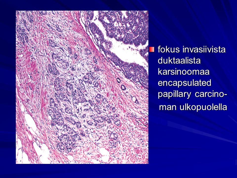 fokus invasiivista duktaalista karsinoomaa encapsulated papillary carcino-