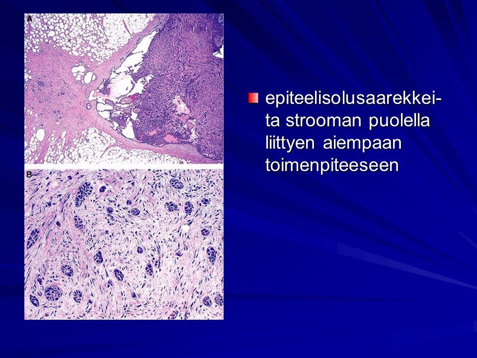 epiteelisolusaarekkei-ta strooman puolella liittyen aiempaan toimenpiteeseen