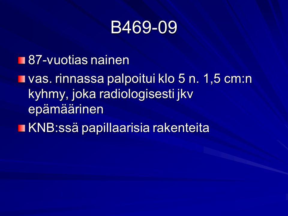 B469-09 87-vuotias nainen. vas. rinnassa palpoitui klo 5 n. 1,5 cm:n kyhmy, joka radiologisesti jkv epämäärinen.