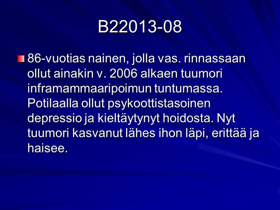 B22013-08