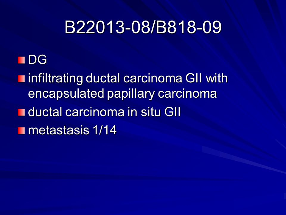 B22013-08/B818-09 DG. infiltrating ductal carcinoma GII with encapsulated papillary carcinoma. ductal carcinoma in situ GII.