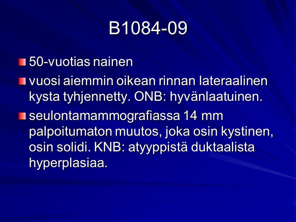 B1084-09 50-vuotias nainen. vuosi aiemmin oikean rinnan lateraalinen kysta tyhjennetty. ONB: hyvänlaatuinen.