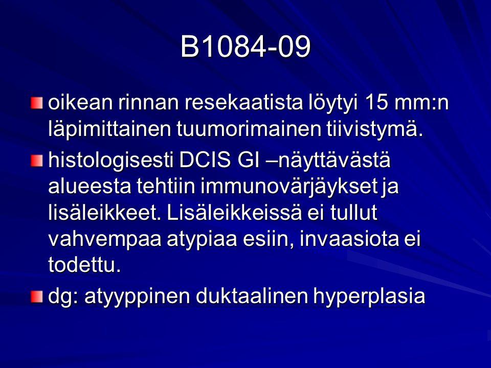 B1084-09 oikean rinnan resekaatista löytyi 15 mm:n läpimittainen tuumorimainen tiivistymä.
