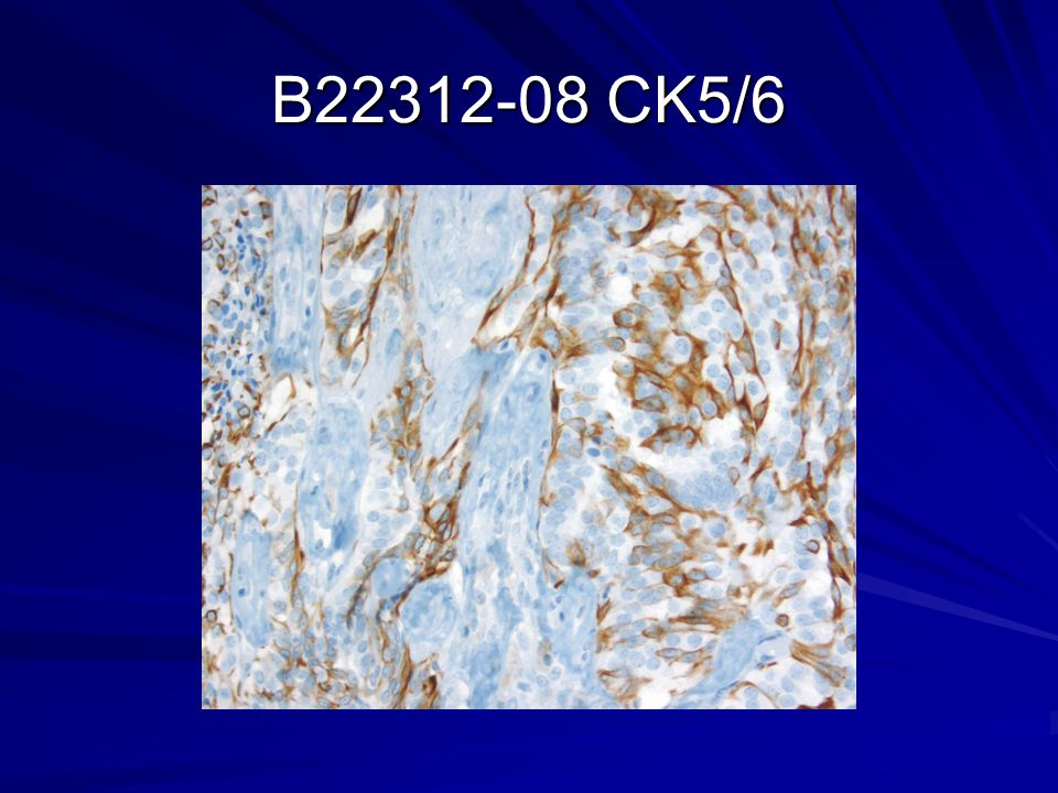 B22312-08 CK5/6