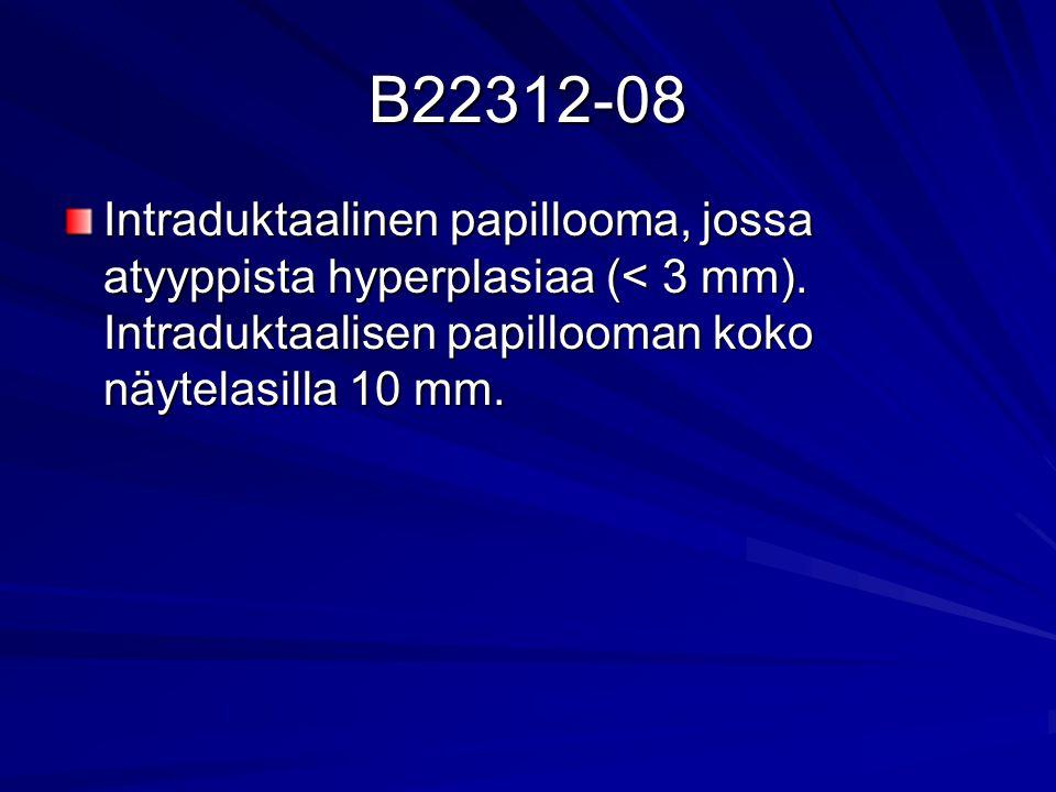 B22312-08 Intraduktaalinen papillooma, jossa atyyppista hyperplasiaa (< 3 mm).