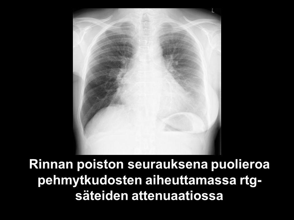 Rinnan poiston seurauksena puolieroa pehmytkudosten aiheuttamassa rtg-säteiden attenuaatiossa