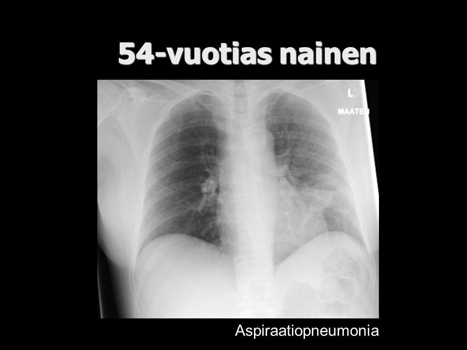 54-vuotias nainen Aspiraatiopneumonia
