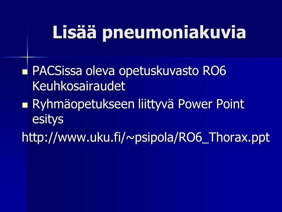 Lisää pneumoniakuvia PACSissa oleva opetuskuvasto RO6 Keuhkosairaudet