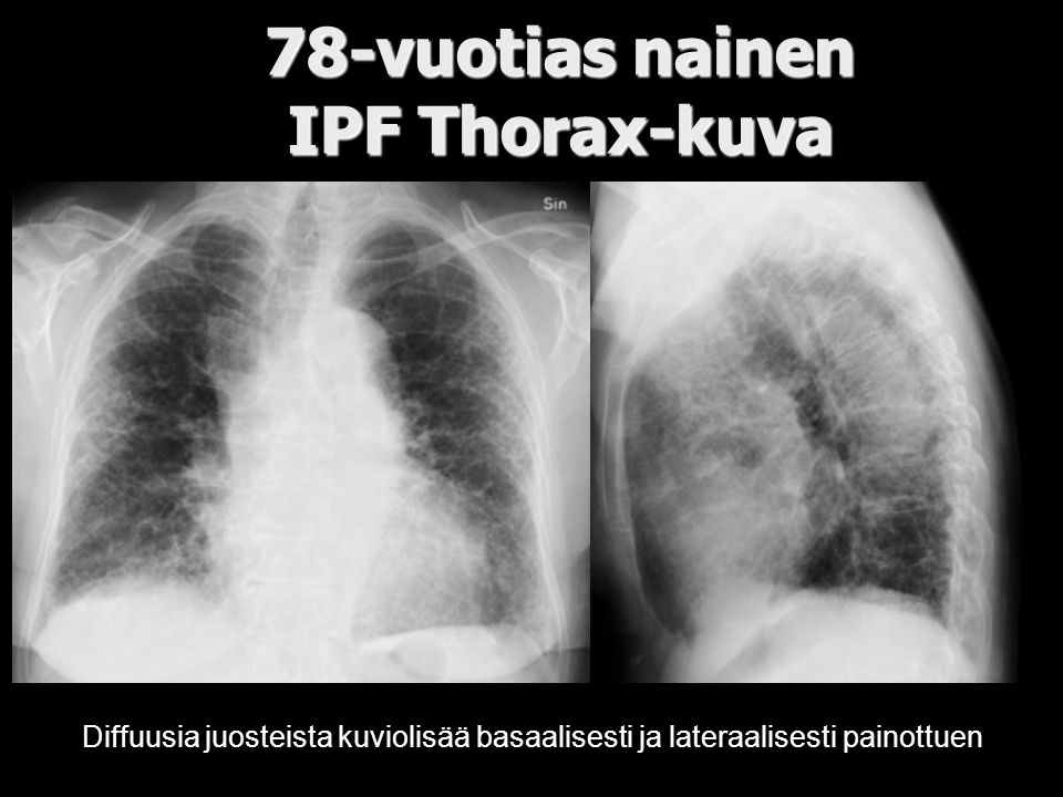 78-vuotias nainen IPF Thorax-kuva