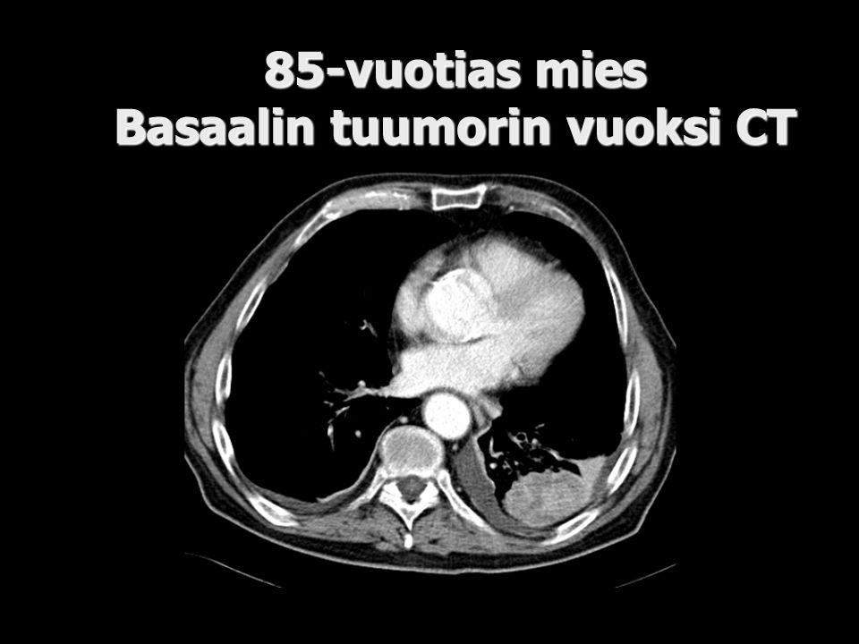 85-vuotias mies Basaalin tuumorin vuoksi CT