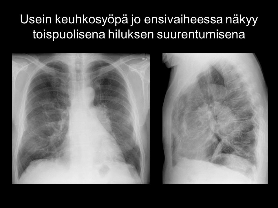 Usein keuhkosyöpä jo ensivaiheessa näkyy toispuolisena hiluksen suurentumisena