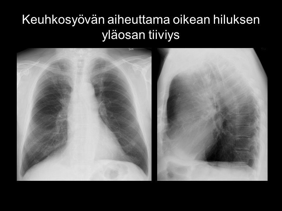 Keuhkosyövän aiheuttama oikean hiluksen yläosan tiiviys