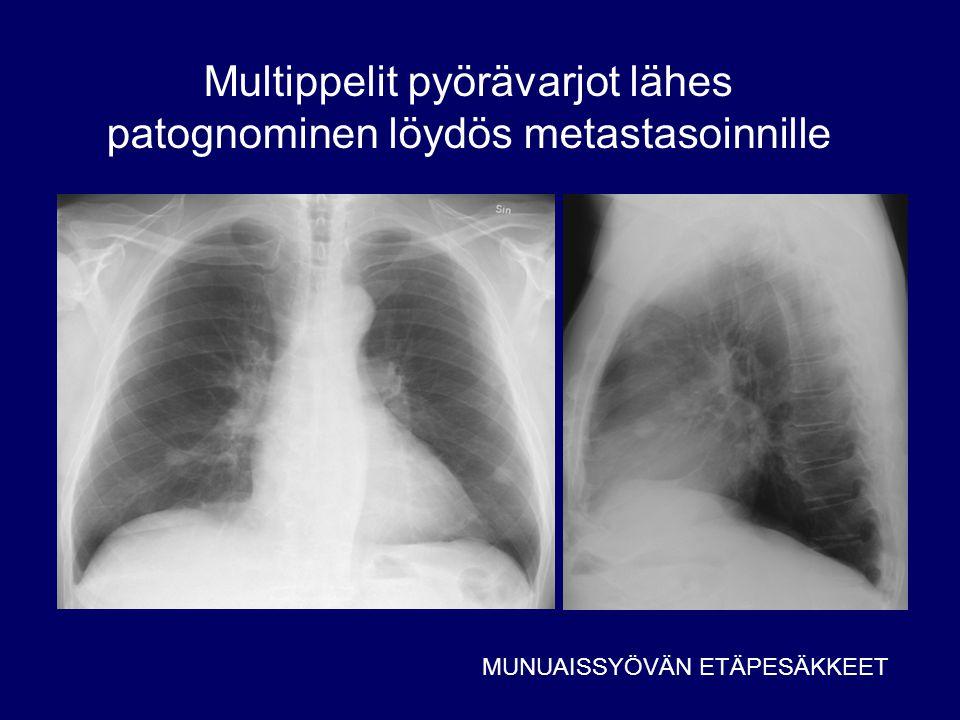 Multippelit pyörävarjot lähes patognominen löydös metastasoinnille