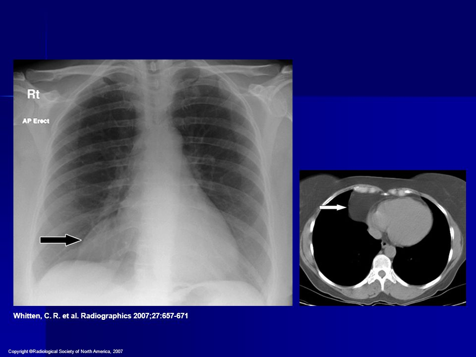 Whitten, C. R. et al. Radiographics 2007;27:657-671