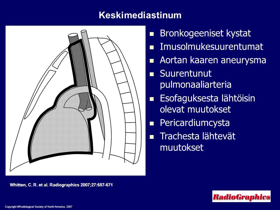 Bronkogeeniset kystat Imusolmukesuurentumat Aortan kaaren aneurysma
