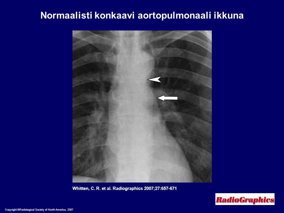 Normaalisti konkaavi aortopulmonaali ikkuna