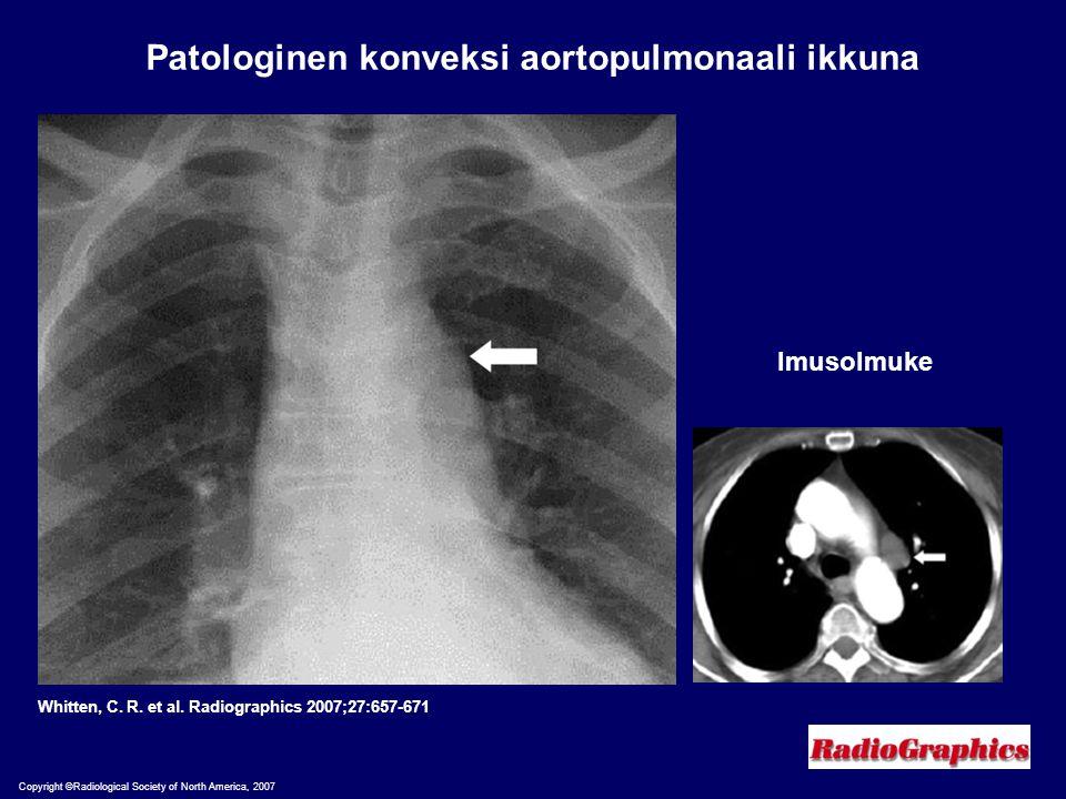 Patologinen konveksi aortopulmonaali ikkuna