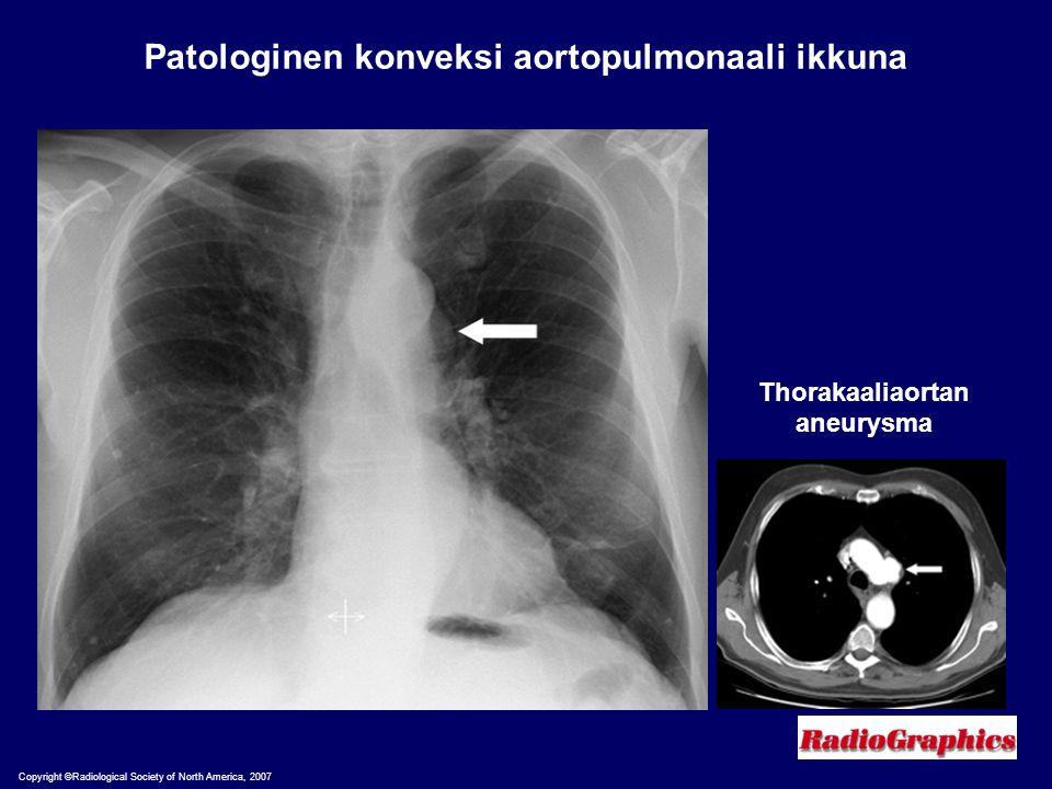 Patologinen konveksi aortopulmonaali ikkuna Thorakaaliaortan aneurysma