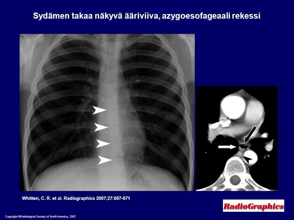 Sydämen takaa näkyvä ääriviiva, azygoesofageaali rekessi