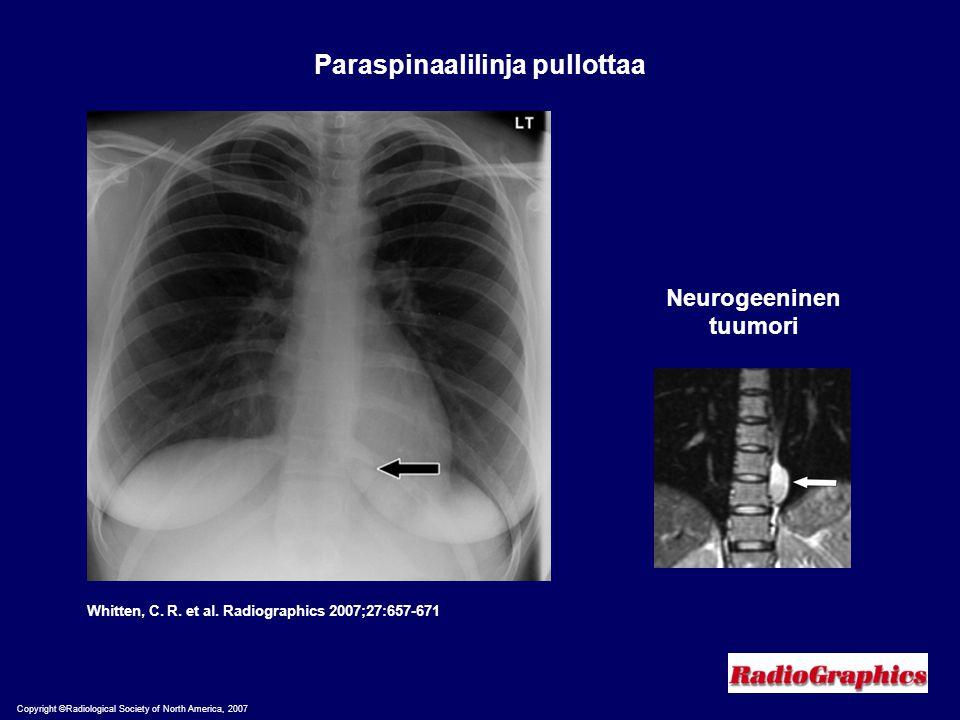 Paraspinaalilinja pullottaa Neurogeeninen tuumori