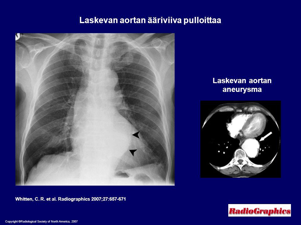 Laskevan aortan ääriviiva pulloittaa Laskevan aortan aneurysma