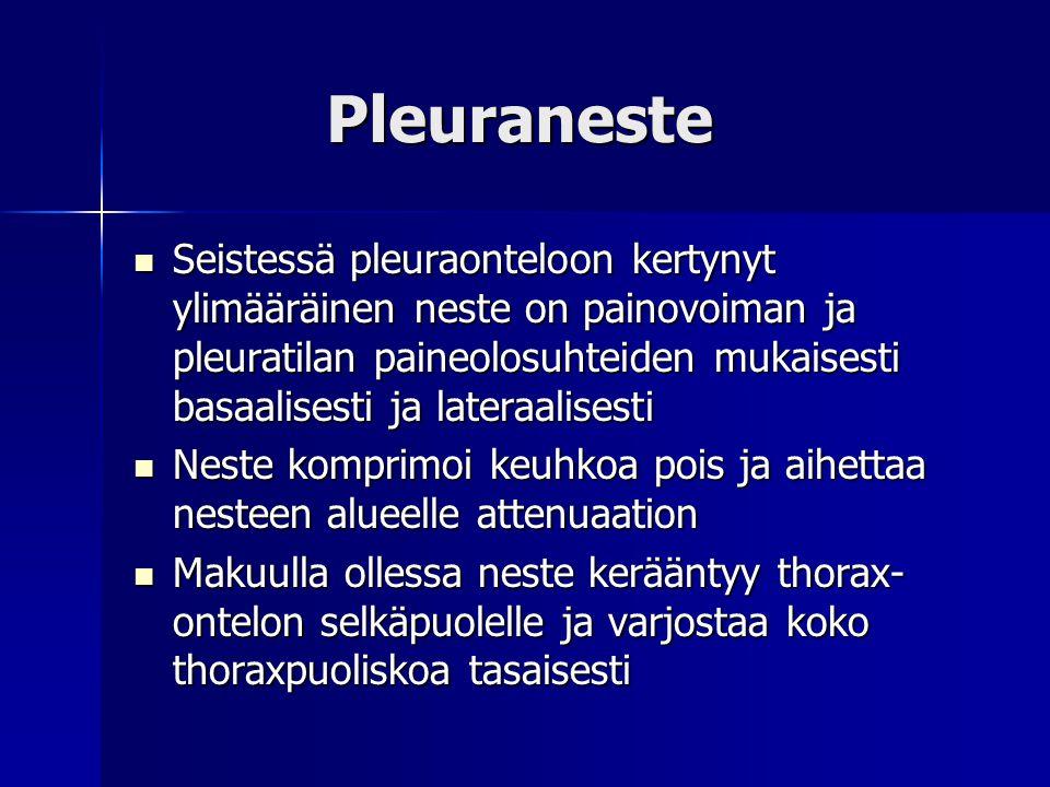Pleuraneste