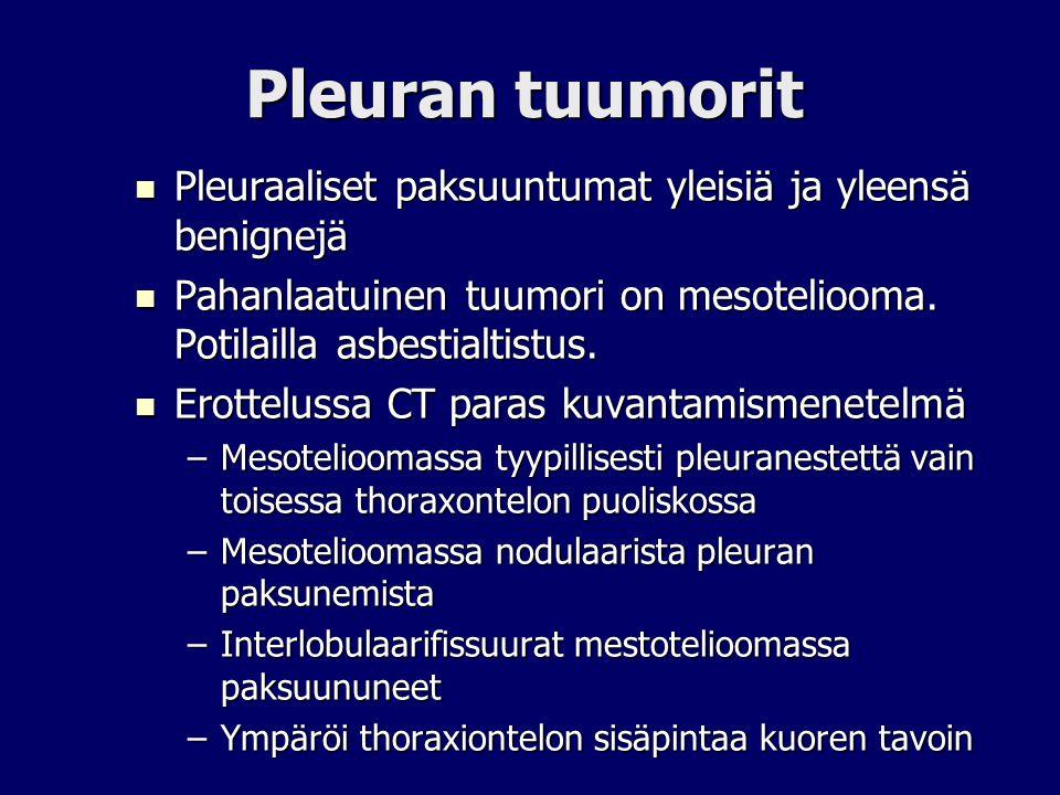 Pleuran tuumorit Pleuraaliset paksuuntumat yleisiä ja yleensä benignejä. Pahanlaatuinen tuumori on mesoteliooma. Potilailla asbestialtistus.