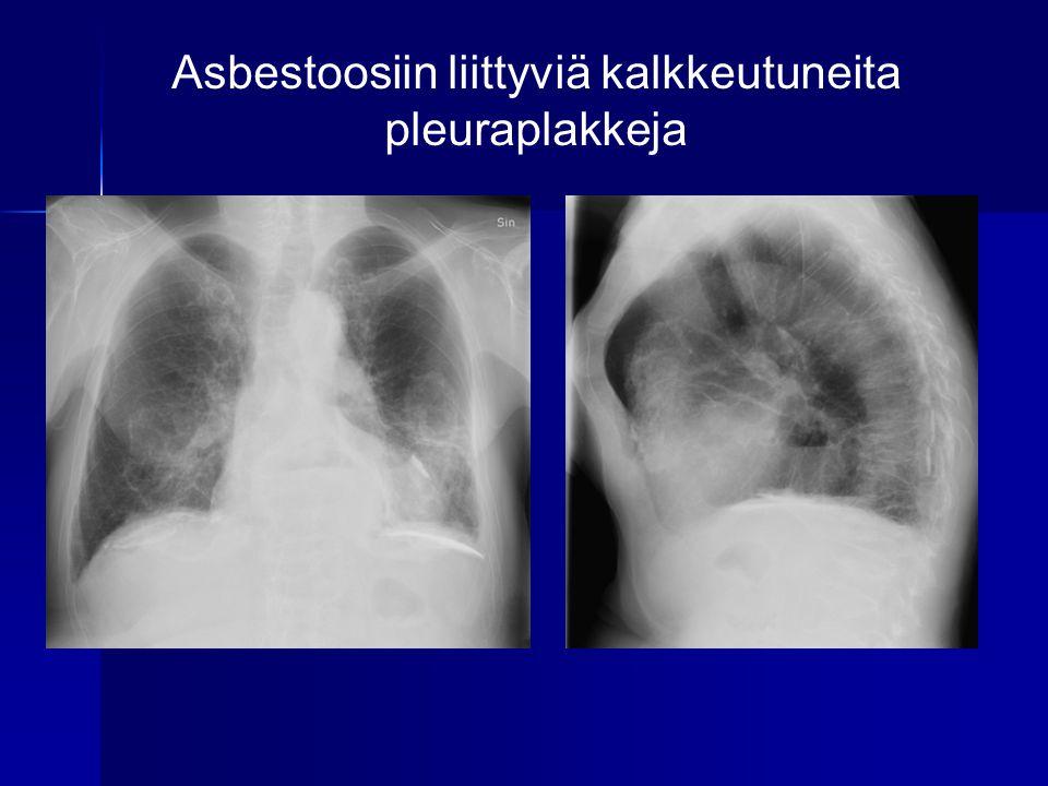 Asbestoosiin liittyviä kalkkeutuneita pleuraplakkeja