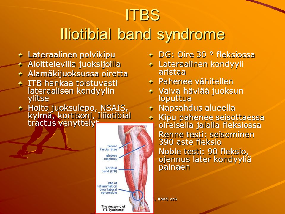 ITBS Iliotibial band syndrome