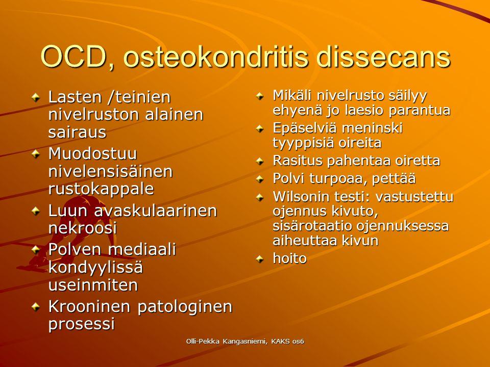 OCD, osteokondritis dissecans