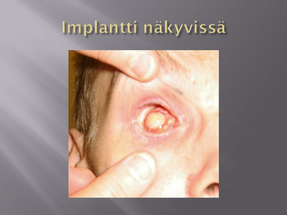 Implantti näkyvissä