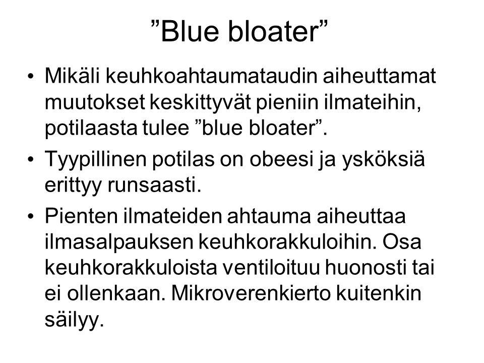 Blue bloater Mikäli keuhkoahtaumataudin aiheuttamat muutokset keskittyvät pieniin ilmateihin, potilaasta tulee blue bloater .
