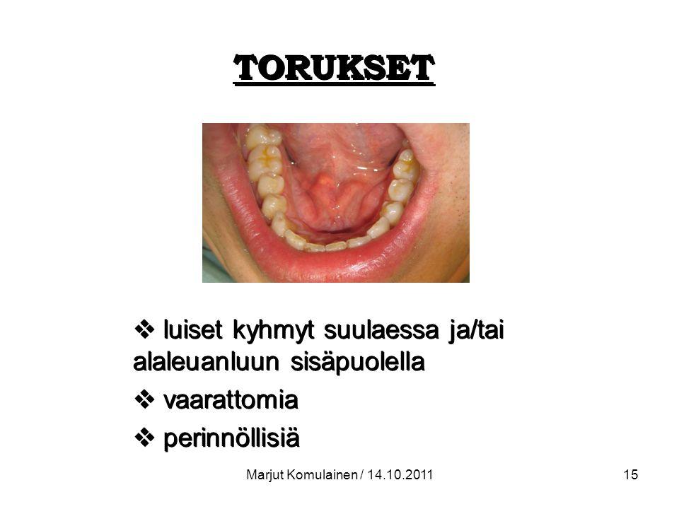 TORUKSET luiset kyhmyt suulaessa ja/tai alaleuanluun sisäpuolella