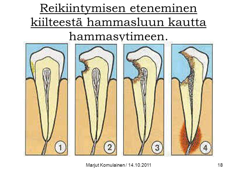 Reikiintymisen eteneminen kiilteestä hammasluun kautta hammasytimeen.