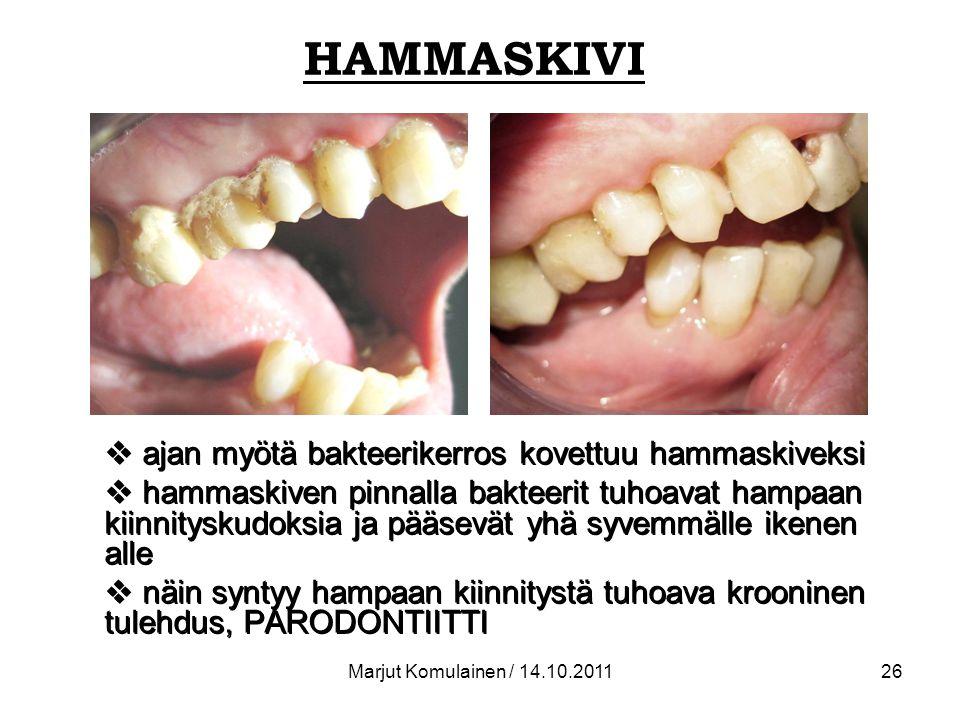 HAMMASKIVI ajan myötä bakteerikerros kovettuu hammaskiveksi
