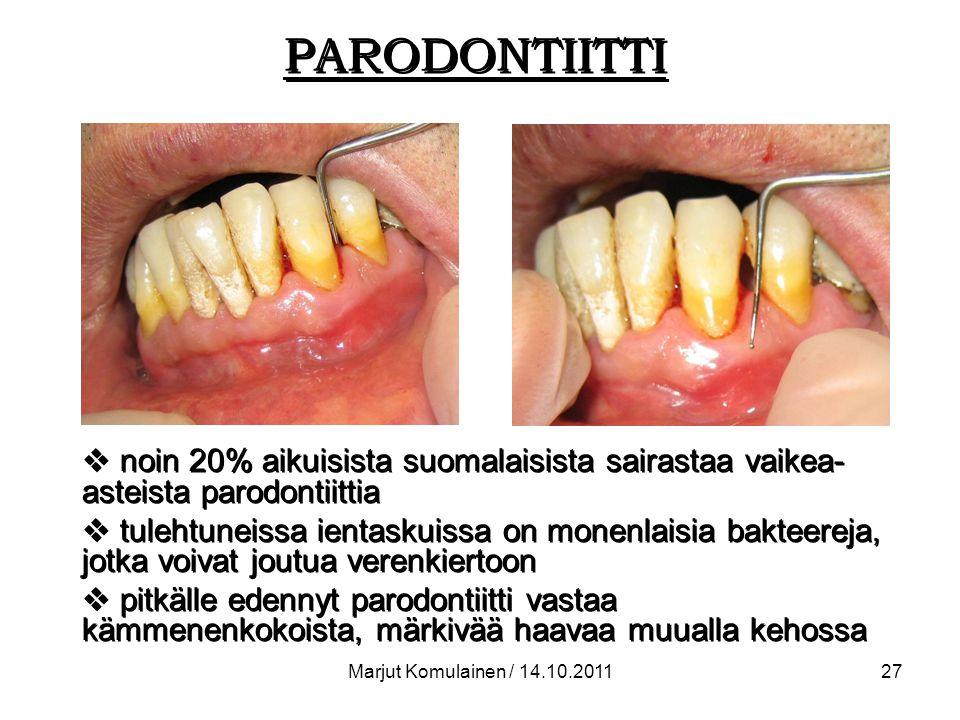 PARODONTIITTI noin 20% aikuisista suomalaisista sairastaa vaikea-asteista parodontiittia.