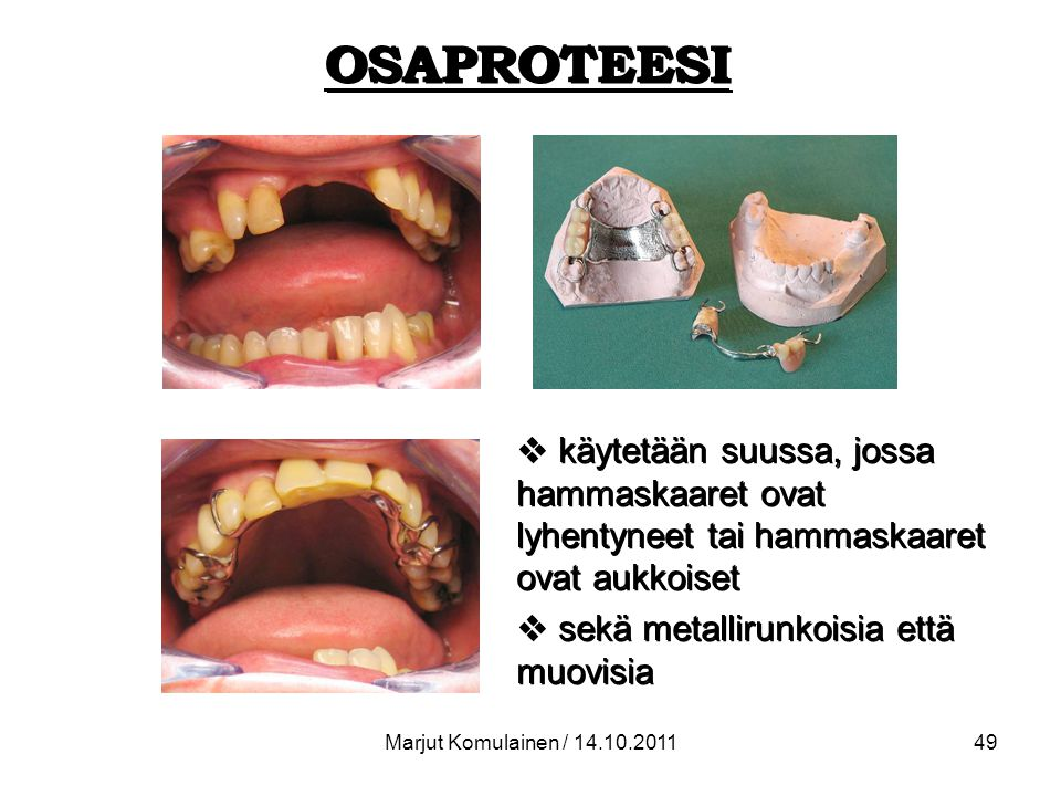 OSAPROTEESI käytetään suussa, jossa hammaskaaret ovat lyhentyneet tai hammaskaaret ovat aukkoiset. sekä metallirunkoisia että muovisia.