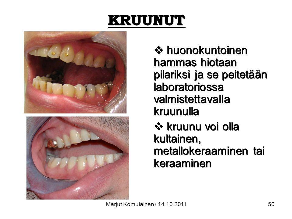 KRUUNUT huonokuntoinen hammas hiotaan pilariksi ja se peitetään laboratoriossa valmistettavalla kruunulla.