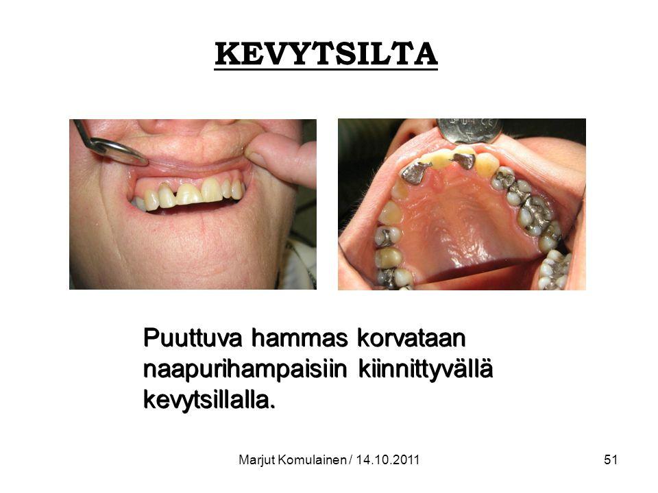 KEVYTSILTA Puuttuva hammas korvataan naapurihampaisiin kiinnittyvällä kevytsillalla.