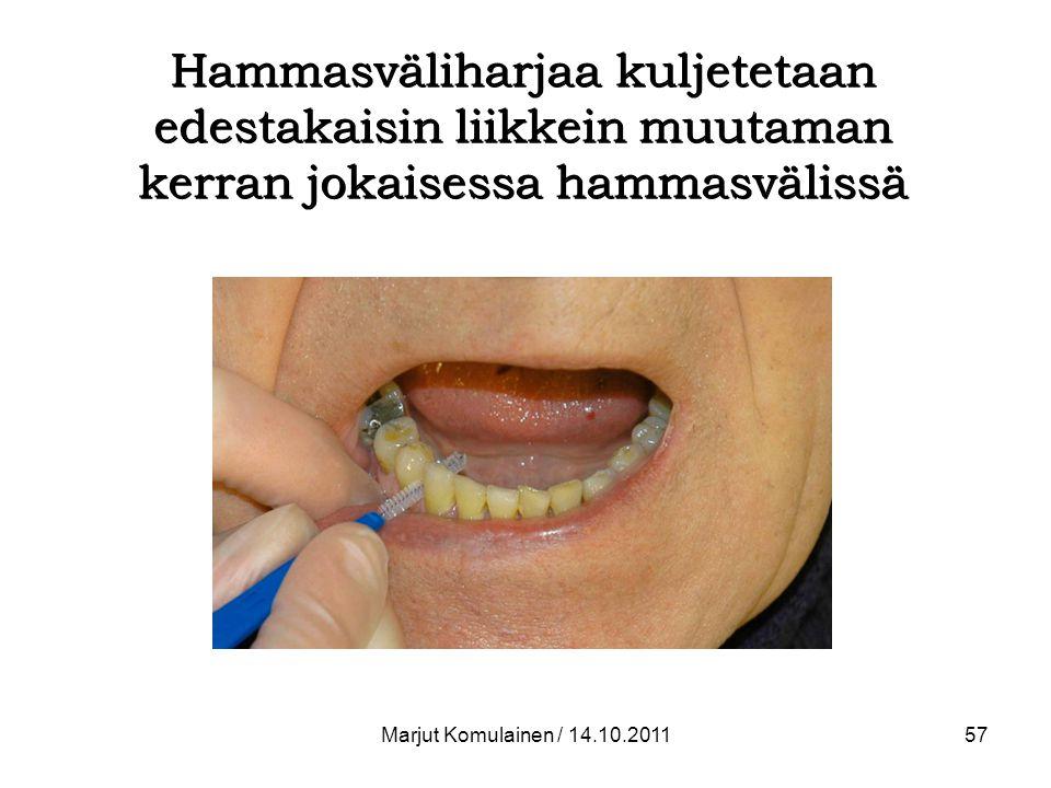 Hammasväliharjaa kuljetetaan edestakaisin liikkein muutaman kerran jokaisessa hammasvälissä