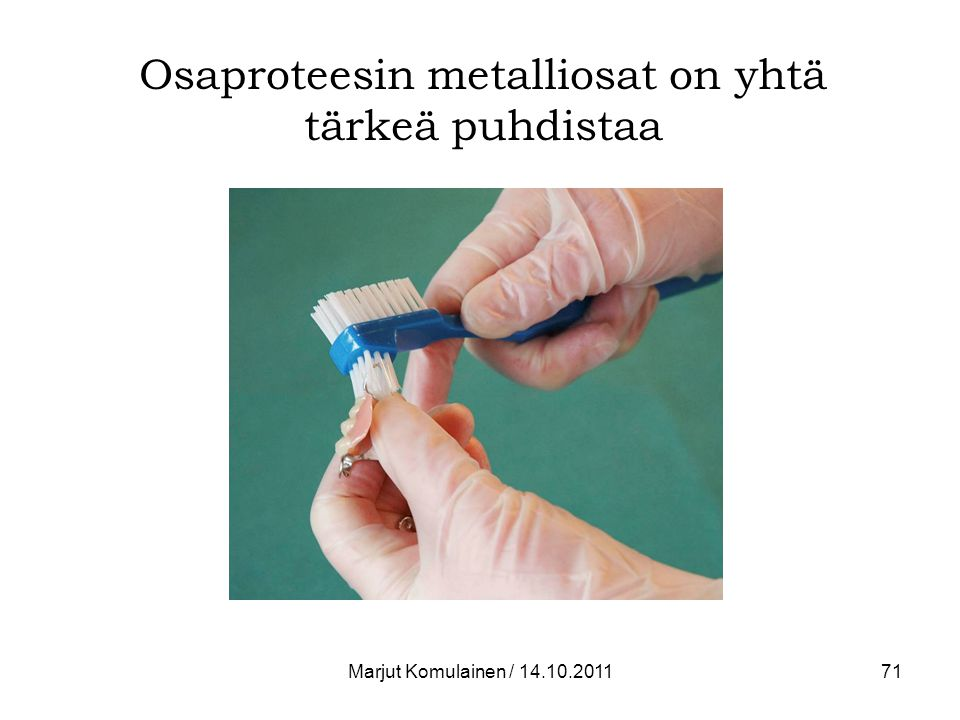 Osaproteesin metalliosat on yhtä tärkeä puhdistaa