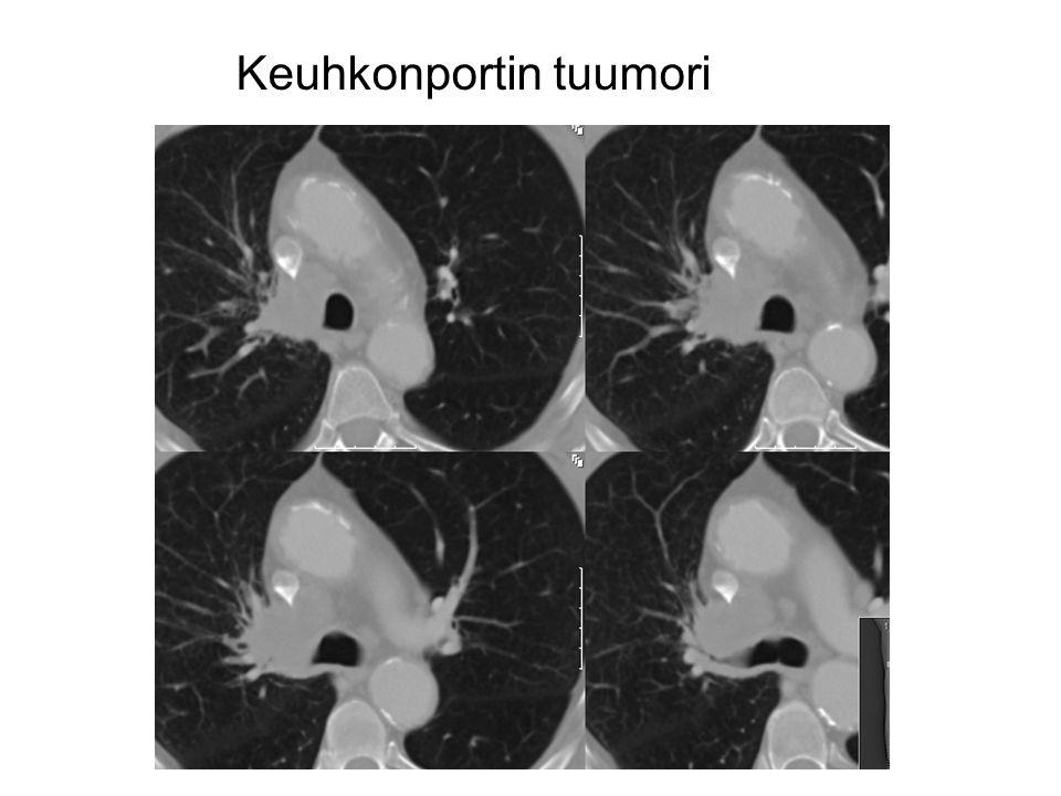 Keuhkonportin tuumori