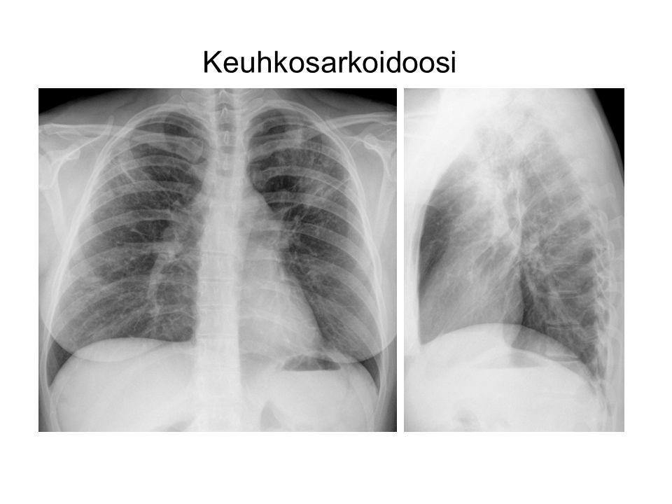 Keuhkosarkoidoosi 30 V NAINEN KYHMYRUUSU BAL : LYMFOSYTOOSI