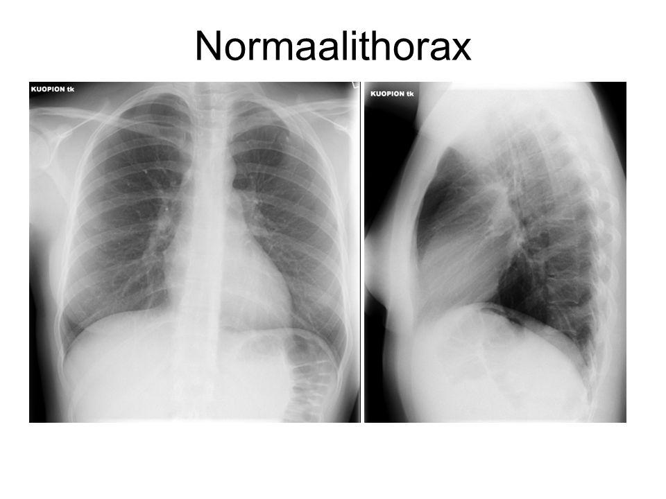 Normaalithorax